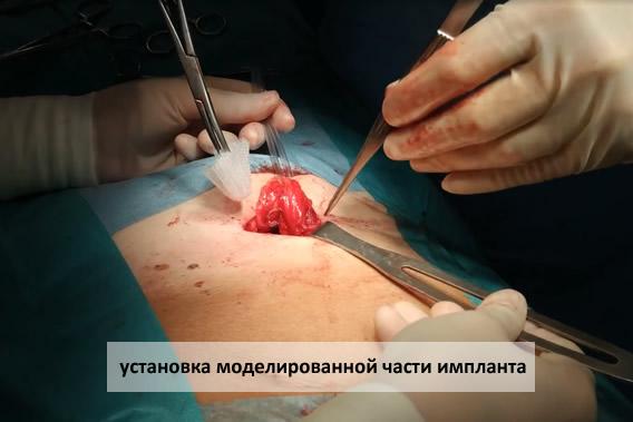 установка моделированной части импланта