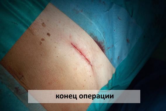 конец операции